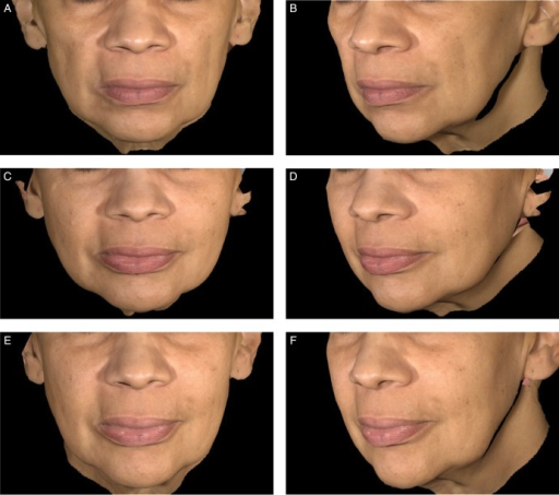 Aesthetic outcomes with Juvéderm Voluma XC for this 59-year-old woman before treatment (A, B), at 6 months (C, D), and at 24 months (E, F) after treatment with 8.9 mL of Juvéderm Voluma XC in the midface.