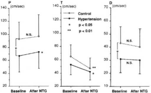 Changes of the carotid Doppler peak velocities of percussion (P), tidal (T) and diastolic wave (D) after sublingual nitroglycerin (NTG) in normal controls and hypertensive subjects.