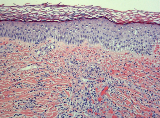 Skin biopsy of a patient with neoplasia presenting with palpable purpura. Typical histologic findings consistent with leukocytoclastic vasculitis. Neutrophilic infiltration, leukocytoclasia, fibrinoid necrosis, and erythrocyte extravasation into the vessel wall of arterioles, capillaries, and postcapillary venules from dermis are visible. [This figure can be viewed in color online at http://www.md-journal.com].