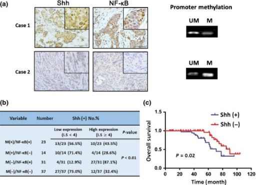 Sonic hedgehog (Shh) expression, nuclear factor-kappa B (NF-κB) expression and promoter hypomethylation in breast cancer. (a) The expression of Shh and NF-κB, and methylation status of Shh promoter in representative breast cancer tissues. M, methylation; UM, unmethylation. Figures magnified 200× or 400×. (b) The correlation among Shh, NF-κB and promoter methylation in breast cancer. A sample is defined as Shh or NF-κB + if it has an IS ≥4. (c) Overall survival according to expression of Shh in breast cancer.