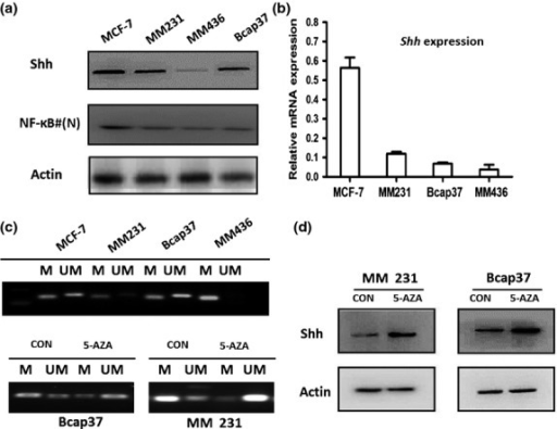 The correlation of nuclear factor-kappa B (NF-κB) expression and promoter methylation status with Sonic hedgehog (Shh) expression in breast cell lines. (a) The expression of Shh and nuclear NF-κB in breast cancer cell lines. (b) The expression of Shh mRNA in breast cancer cell lines. MDA-MB-231 (MM231); MDA-MB-436 (MM436). (c) Methylation status of Shh promoter in breast cell lines and the effect of 5-azacytidine (5-Aza) treatment. MM231 and Bcap37 cells were treated with 20 μM 5-Aza for 72 h. The genomic DNA was extracted for methylation-specific (MS)-PCR. M, methylated; UM, non-methylated. (d) Expression of Shh in breast cell lines after 5-Aza treatment.