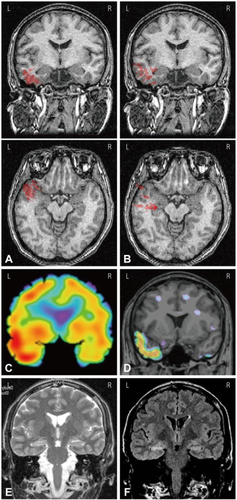EEG and MEG dipole source analysis of patient #14 who had left temporal lobe epilepsy. A: EEG dipoles [high-pass filter (HPF)=3 Hz, goodness of fit (GOF) levels ≥70%] were localized in left basal and anterior temporal regions. B: MEG dipoles (HPF=3 Hz, GOF levels ≥70%) were localized in left anterior to middle temporal regions. C: Ictal SPECT showed left temporal hyperperfusion. D: SISCOM showed left anterior to mid temporal hyperperfusion. (E) T2-weighted MRI and (F) FLAIR MRI showed left hippocampal sclerosis. L: left, R: right.