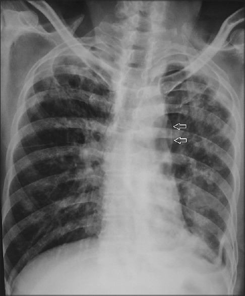 Case 2: Chest X-ray reveals bilateral upper zone fibrotic lesions, small left hydropneumothorax and a thin line across the left hilum (arrows)