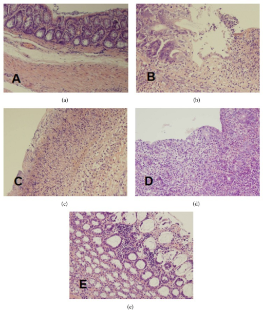 Histological features of the rat colonic mucosa stained by haematoxylin and eosin (original magnification 400x). (a) Control rats without induction of colitis and treated with saline for 7 days; (b) rats with colitis treated with saline for 7 days; (c) rats with colitis treated with Mutaflor for 7 days; (d) rats with colitis treated with rifaximin for 7 days; and (e) rats with colitis treated with the combination of rifaximin plus Mutaflor for 7 days.