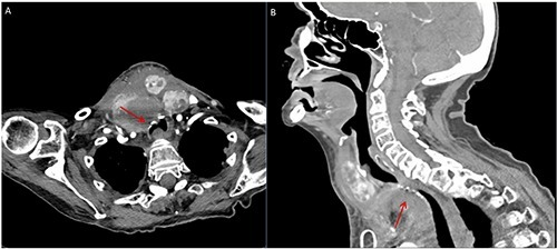 Computed tomography scan showing diffusely enlarged heterogeneous (5.7×5.2×4.9 cm) thyroid extending into the superior mediastinum. There is a mass effect on the subglottic airway from the large heterogeneous thyroid goiter. A) Axial view; B) sagittal view.
