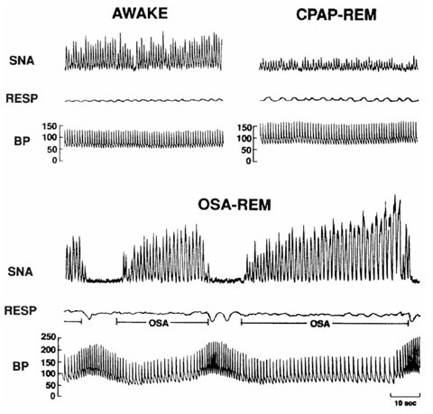 Recordings of sympathetic nerve activity (SNA), respiration (RESP) and intra-arterial blood pressure (BP) in the same subject when awake (top left), with obstructive sleep apnea (OSA) during rapid eye movement (REM) sleep (bottom), and with elimination of obstructive apnea by continuous positive airways pressure (CPAP) therapy during REM sleep (top right). SNA is very high during wakefulness, but increases even further secondary to OSA during REM. BP increases from 130/65 mmHg when awake to 256/110 mmHg at the end of apnea. Overall, nocturnal blood pressure is increased. Elimination of apnea by CPAP therapy (top right) results in decreased sympathetic traffic and prevents BP surges during REM sleep. Reproduced with permission from [16].