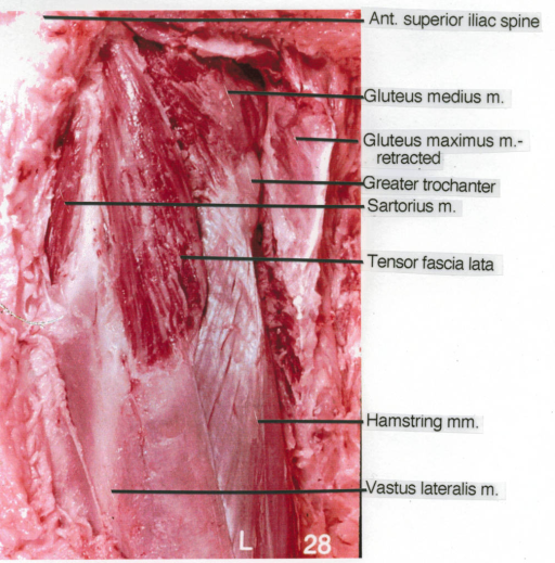 anterior superior iliac spine; gluteus medius muscle; gluteus maximus muscle; greater trochanter; sartorius muscle; tensor fascia lata muscle; hamstring muscles; vastus lateralis muscle