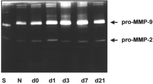 Detection, by gelatin zymography, of pro-matrix metalloproteinase-2 (pro-MMP-2) and pro-MMP-9 expression in joint extracts at different time points after the induction of antigen-induced arthritis. Joint extracts were prepared at days 0, 1, 3, 7 and 21 and from normal mice (N) (three individual animals per day). The protein concentration was determined by bicinchoninic acid protein assay, and equal amounts of protein were applied to each lane. The zymography was developed and stained as described in Materials and Methods. The picture shows a representative gel of three comparable experiments. S, standard (human pro-MMP-2, [72 kDa] and pro-MMP-9 [92 kDa]).