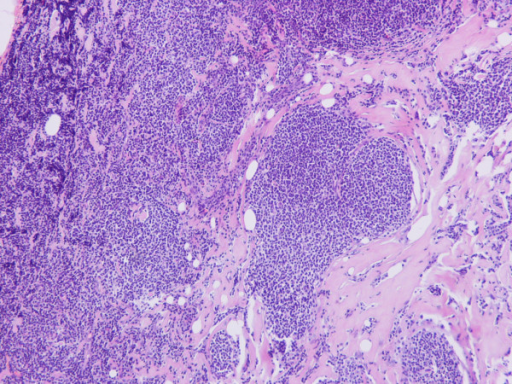 Invasion of the breast parenchyma by the nodular non-Hodgkin B-cell lymphoma (H+E × 100).