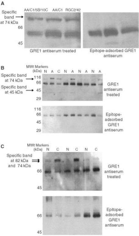 Western blot analysis showing CCK-2 receptor isoform immuno-reactivity of human colonic adenoma specimens and human colonic adenoma cell lines. (A) Human colonic adenoma cell lines. (B) Human colonic adenoma specimens. Resection margin normal (N), adenoma (A) and adenocarcinoma (C) specimens from individual patients. (C) Human colonic adenocarcinoma specimens. Resection margin normal (N) and adenocarcinoma (C) specimens from individual patients.