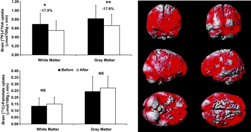 Left: Graphs show the results of brain white and gray matter uptake of [18F]-FTHA and [11C]-palmitate in the MS group before and after VLCD. P values were calculated using paired Student t test. *P value < 0.02; **P value of 0.009; NS, not significant; black bars, before VLCD; white bars, after VLCD. Right: Results from the voxel-based mapping analysis. Results are rendered on an anatomical brain model; red areas illustrate brain regions where [18F]-FTHA uptake was significantly reduced after dieting among MS patients (Tmax = 4.21 at (−66, −22, 48), kE = 161,315, cluster-level corrected P < 0.0005). (A high-quality digital representation of this figure is available in the online issue.)