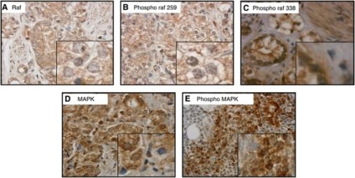 Raf and MAPK localisation in prostate cancer. Tissue sections counterstained with haematoxylin showing (magnification × 400) (A) total Raf; (B) inactive pRaf (Ser259); (C) active pRaf (Ser338); (D) total MAPK; and (E) activated (phospho) MAPK localisations in prostate cancer. Inset shows higher magnification images.
