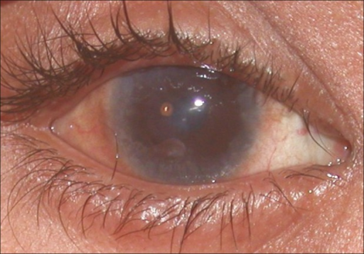 Right eye during remission shows burnt out inflammation. Annular limbal scarring, a central shield ulcer scar and diffuse subepithelial haze