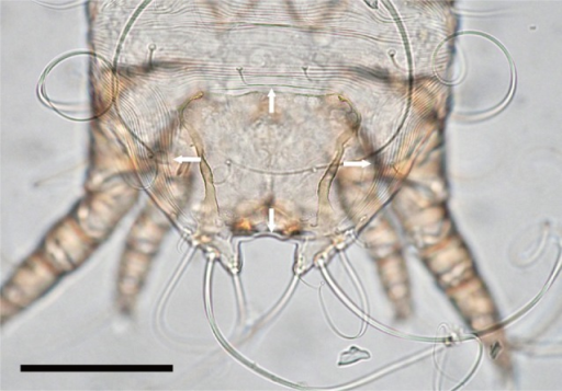 Posterior dorsal scutum of Caparinia tripilis adult male is wider than its length (arrows). Bar=100 µm.