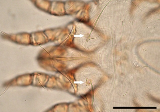 Dorsal surface of Caparinia tripilis adult female. Humeral seta is inserted in an oval-shaped scutum (arrows). Bar=100 µm.