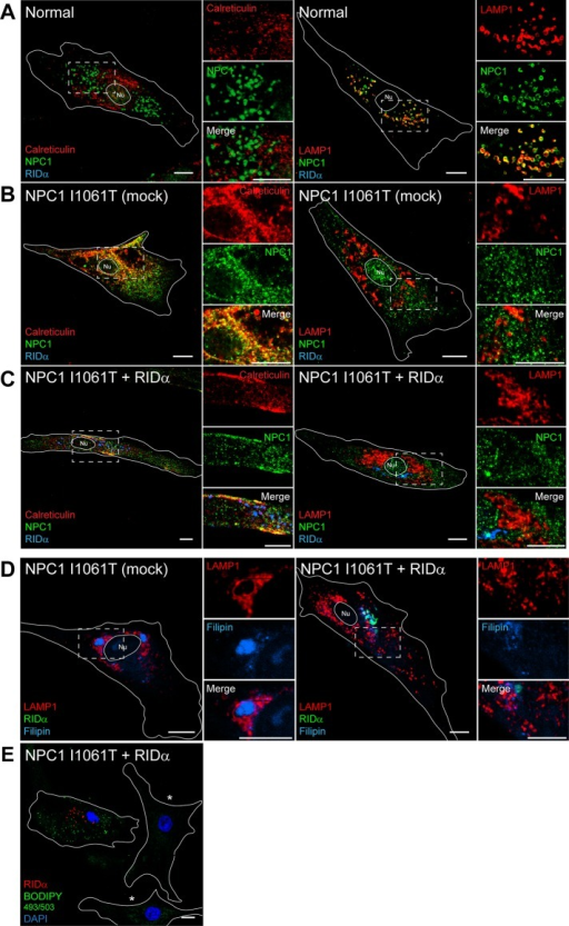 RIDα does not rescue ER retention of defective NPC1 I1061T mutant protein in patient fibroblasts. (A–C) Confocal images of normal (A), mock-transfected homozygous NPC1 I1061T mutant (B), or homozygous NPC1 I1061T mutant fibroblasts transfected with FLAG-RIDα (C) and stained with antibodies to NPC1 and FLAG-RIDα and costained with antibodies to calreticulin (left) or LAMP1 (right). (D, E) Confocal images of homozygous NPC1 I1061T mutant fibroblasts mock transfected (D, left) or transfected with FLAG-RIDα (D, right; E) and stained with antibodies to LAMP1 and FLAG-RIDα and with filipin (D) or with antibody to FLAG-RIDα and with BODIPY 493/503 and DAPI (E). Mock-transfected cells in E are shown in the same field and designated with an asterisk Boxed areas, regions of the image that were magnified. Bars, 10 μm. Nu, nucleus.