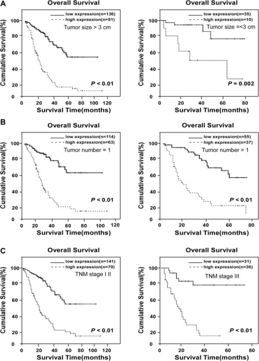 Kaplan-Meier analysis of OS in 272 patients based on LARP1 expressions in HCC clinical subgroups. (A) When patients were divided into subclinical groups according to tumor size, probabilities of survival with either HCC lesion diameter > 3 cm (left) or ≤3 cm (right), as well as high- and low-LARP1 expression, distinguishes lower and higher, respectively, SO rates. (B) OS in patients with single tumor lesion and multi-tumor lesion. (C) OS rates in patients subgrouped into TNM stages I-II (left) and TNM stages III (right) as differentiated by high- or low-LARP1 expression.