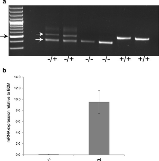 Genotyping and Slc20a2 mRNA levels. a Genotyping of breeders heterozygous for the knockout cassette (−/+) and of homozygous (−/−) and wt (+/+) offspring. Black arrow, 500-bp size marker. White arrows, 523-bp PCR product derived from wt allele (upper) and 443-bp PCR product derived from allele with inserted knockout cassette (lower). b Tail fibroblasts from a Slc20a2 knockout mouse (−/−) and three wt mice were lysed, and Slc20a2 mRNA levels were evaluated by qRT-PCR using primers positioned downstream of the knockout cassette. Slc20a2 mRNA levels relative to B2M are shown. Error bars represent standard deviations