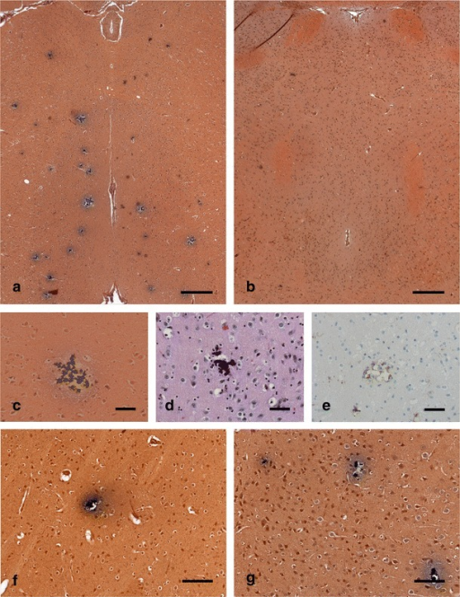 Histology of calcifications in brain sections from homozygous Slc20a2 knockout mouse. a, b Von Kossa staining of thalamus regions showing multiple calcifications as black conglomerates in a 19-week-old homozygous Slc20a2 knockout mouse (a), but not in a 21-week-old wt mouse (b) (scale bars, 300 μm). The calcifications are composed of smaller elements seen both in Von Kossa (c) and HE (d) stainings. In sections stained for macrophages/microglia (F4/80), a tissue reaction is demonstrated (e), but not in the wt control (not shown) (scale bars, 50 μm). Calcifications were also found in other brain regions, as seen by Von Kossa staining of the basal ganglia (f) and cortex (g) (scale bars, 100 μm)