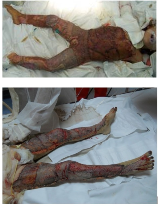 Combined covering methods - lower limbs covered with autografts and xenografts sandwich; trunk covered with autografts