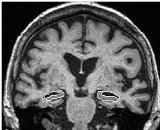 Example of manual anatomical delineation of the hippocampus (white line with grey area inside) and temporal horn of the lateral ventricle (white line with black area inside) on the left and right side.Coronal sections of the MRI are located at the transition from the alveus of the hippocampus into the hippocampal body.