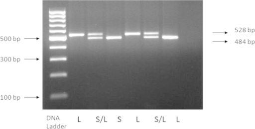 PCR products for amplification using 5-HTTLPR primers. Lane 1 and 4 show homozygous long allele (L), lane 2 and 5 show heterozygous short-long allele (S/L), while lane 3 and 6 show homozygous short allele (S)