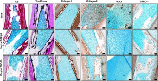 Histological analysis of TGF-β3 effects on E13 embryonic chick femurs organotypic cultures.Histological analysis of the mid-diaphyseal region of organotypic cultured embryonic femurs (E13) in basal and TGF-β3 conditions (scale bar = 100μm). All representative images depict the mid-diaphyseal region of the femur.