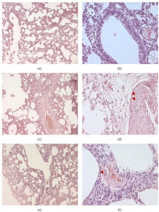 PACAP aerosols reduce AMV-induced inflammatory infiltration and colliquative necrosis in alveolar and bronchiolar tissues. Histological analysis of paraffin-embedded lungs stained with hematoxylin and eosin from animals exposed to vehicle (a, b), AMV aerosols alone (c, d) or followed by inhalation of PACAP aerosols (e, f). The presence of edema (asterisks), the enlargement of air spaces (En), and mononuclear cell infiltration (arrowheads) as well as the pyknotic nuclei (P) are indicated. Representative photomicrographs showing the structure of the alveolar and bronchiolar tissues at low (100x; a, c, and e) and higher (400x; b, d, and f) magnification (n = 8 for each experimental group). A: alveolus; En: air space enlargement; P: pyknotic nucleus; R: respiratory bronchiole; T: terminal bronchiole; V: pulmonary vessels.