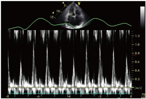 Pulsed-wave Doppler image reveals significant respiratory variation of the mitral inflow velocity.
