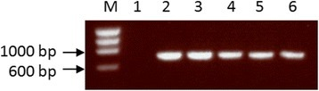 Gel image showing COI amplification products. The samples are PhiX174 DNA marker (M), negative control (1), mosquito blood-meal samples (2–4) and a positive control of DNA (5,6). The positive control was DNA extracted directly from horse blood