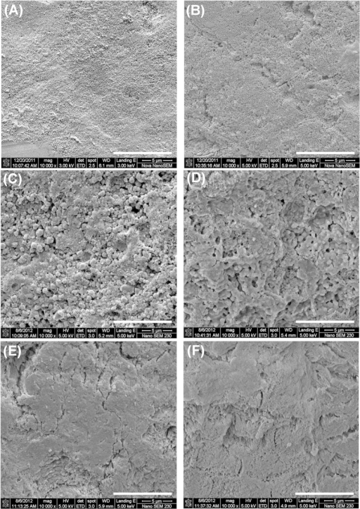 SEM images obtained from the enamel specimens (A) before and (B) after pH cycling. Dense granular structures were observed after fluoride-strip treatment for 24 h (C) and the granular structures diminished to some extent after KOH treatment (D). No particular morphology (like granular structures) was found after toothpaste treatment for 24 h (E) and the morphology remained after KOH treatment (F). The white scale bar at the lower right-hand corner of each image represents 10 μm.
