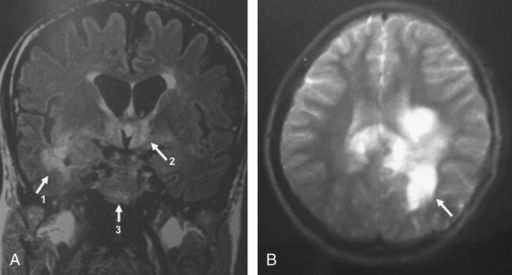 Brain MRI in WD with neurologic involvement. A, Flair-weighted MRI showed diffuse hyperintensities involving medial temporal lobes (arrow 1), hypothalamic regions (arrow 2), and a focal lesion of the left cerebral peduncle (arrow 3). B, T2-weighted MRI showed large pseudotumoral and nodular hyperintense lesions involving corpus callosum and periventricular white matter (arrow) with less mass effect than should be expected.