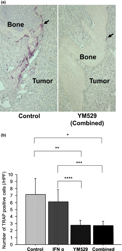 Effect of YM529 on the number of osteoclasts in bone lesions. (a) At the end of therapy (day 88), bone lesions were harvested and osteoclasts were stained for TRAP. (b) The number of osteoclasts was significantly less in bone lesions of mice treated with YM529 alone or in combination with IFN-α than in control mice or in mice treated with IFN-α alone (*P = 0.0082, **P = 0.0105, ***P = 0.0073, ****P = 0.0101).