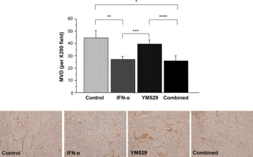 Micro-vessel density was significantly lower in tumors treated with IFN-α alone or in combination with YM529 than in control tumors (*P = 0.0275, **P = 0.0252) and in tumors of the single-agent YM 529-treatment group (***P = 0.0202, ****P = 0.0285).