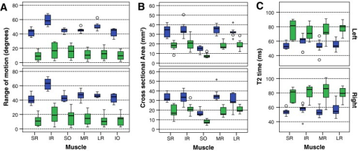 Box plot of control (blue) and patient (green) values in each extra-ocular muscle: range of motion (A), cross-sectional area (B) and T2 relaxation time (C). The box represents 25th – 75th percentiles, the solid line in the box represents the median value, stems are to maximum and minimum values, o = minor outlier; + = major outlier. IO inferior oblique, IR inferior rectus, LR lateral rectus, MR medial rectus, SO superior oblique, SR superior rectus