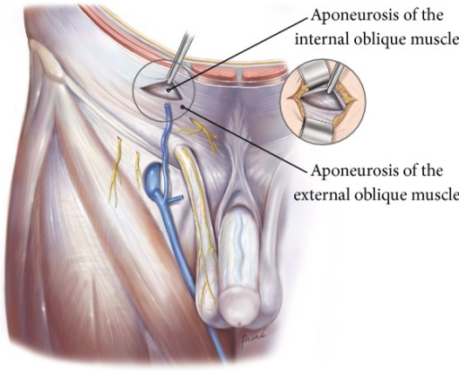 the external aponeurosis is incised to expose the under open i
