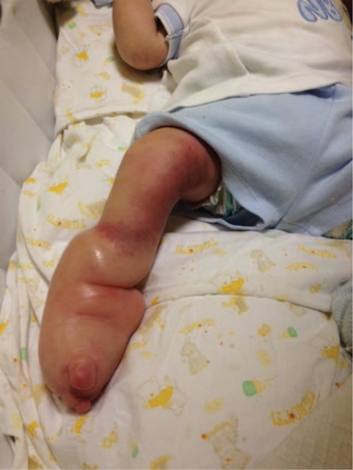 venturi vacuum effect on the baby s foot caused by the open i