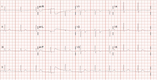 EKG 1 day after stent placement, showing deep T-wave inversion in leads V1–V3.