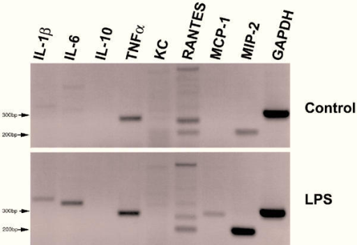 RT-PCR for cytokine mRNAs Treated MGBE were exposed to 100 μg/mL E. coli LPS on the apical surface for two hours. GAPDH was used as an internal control to standardize starting mRNA quantity. This experiment was repeated twice with equivalent results.