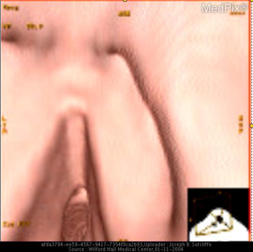 "Can you identify the ""virtual"" anatomy in this image?"