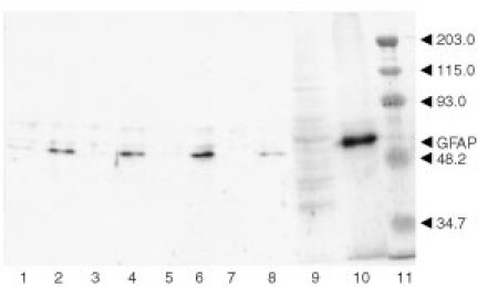 Immunoblotting with anti-GFAP antibody. Cells cultured in media containing 10% FBS, were collected 24 h after incubation without (lanes 1, 3, 5, 7 and 9) and with DSA (lanes 2, 4, 6, 8 and 10). Lanes 1 and 2, U251; lanes 3 and 4, SNB-75; lanes 5 and 6, SNB-78; lanes 7 and 8, SF-539; lanes 9 and 10, C6. SDS-solubilised fractions obtained from each cell preparation were applied to SDS–PAGE using a 10% acrylamide gel, and the separated proteins were transferred to a PVDF membrane. Lanes from 1 to 8 contained 5 μg protein, and lanes 9 and 10 did 10 μg. The PVDF membrane was stained with anti-GFAP antibody. The migration positions of GFAP and molecular weight markers (kilodalton) are indicated (lane 11).
