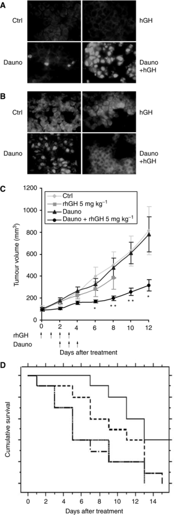 In vivo effect of hGH on daunorubicin treatment of engrafted tumours. Small tumour fragments obtained from U937-Neo tumours were transplanted subcutaneously in previously irradiated nude Swiss mice. Tumour-bearing mice either received i.p. injections of saline solution or subcutaneous injections of rhGH alone, or the highest subtoxic dose of daunorubicin (1.5 mg kg−1) with or without 5 mg kg−1 of rhGH. (A) Tissue sections from mice treated as above were submitted to TUNEL assay. Note the significant number of stained nuclei in tumours from rhGH- and daunorubicin-treated animals, indicating a high apoptosis rate in these animals. (B) The same tumours were assessed for NF-κB activation, as evidenced by the presence of the P65 subunit in the nuclei. Note the lower number of stained nuclei in tumours from mice treated with rhGH and daunorubicin, compared with daunorubicin-treated animals. (C) Tumour volumes were measured in each group of mice. The measurement was stopped when a mouse died or was killed because of a tumour volume exceeding 2000 mm3. Each line represents the mean±s.e.m. of the tumour volumes (*P<0.05 and **P<0.01, when comparing daunorubicin-treated mice to mice receiving daunorubicin and rhGH). (D) Kaplan-Meier curve comparing the different groups of mice with a tumour volume below 300 mm3. PBS-injected mice (….), daunomycine-injected mice (.-.-.-.-.) hGH-injected mice (- - -) and daunomycine+hGH-injected mice (---).
