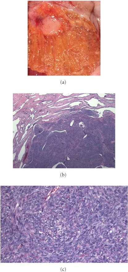 (a) Closer view of gross specimendemonstrating discrete white nodule which was firm. (b) A spindle cellproliferation was intimately associated with unremarkable ductules within therete testis. (c) Higher power viewillustrating bland spindled cell proliferation without mitotic activity.