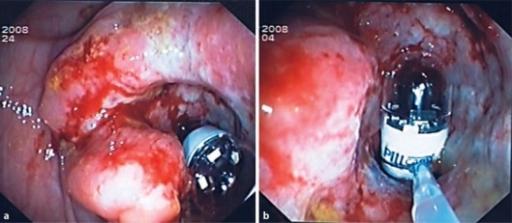 how to over come a narrow bowel