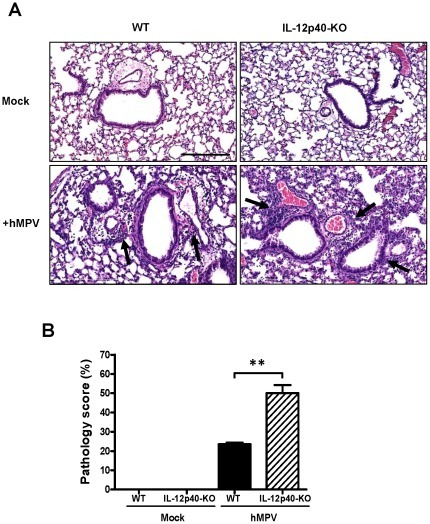 Pulmonary inflammation in hMPV-infected IL-12p40-KO mice.C57BL/6 and IL-12p40-KO mice were infected i.n. with 5×106 PFU of hMPV or mock-treated and lungs were harvested at day 7 after hMPV infection, fixed for slide preparation and H&E stained. (A) Representative stained lung tissue sections from the indicated treatment. Arrows indicate cells infiltrating the perivascular and peribronchial spaces, Scale bar = 200 µm. (B) Pathology score of prepared slides (scored as described in Materials and Methods). n = 5 mice/group. **P<0.01.