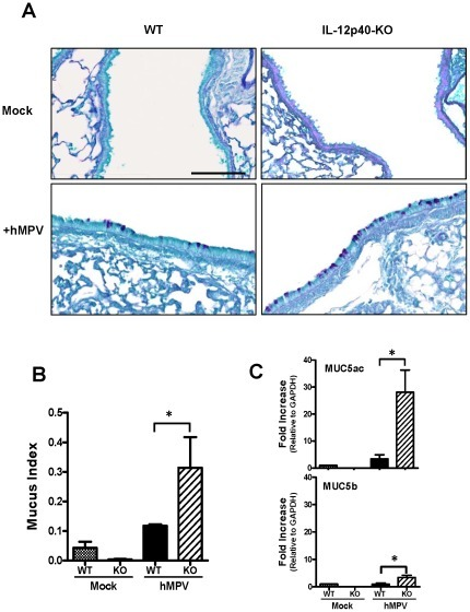 Mucus production after hMPV infection in IL-12p40 deficient mice.C57BL/6 and IL-12p40-KO mice were infected i.n. with 5×106 PFU of hMPV or mock-infected and lungs were harvested at day 7 after hMPV infection. (A) Lung tissue was fixed for slide preparation, PAS stained and tissue sections were digitalized. Representative stained lung tissue sections from the indicated treatment. Mucus-producing cells in the airways were identified by positive PAS staining. Scale bar = 100 µm. (B) Each area of airway epithelium was measured to calculate the Mucus index (as described in Materials and Methods). An average of 52 individual airways were measured per mouse. n = 3 mice/group. (C) RNA was isolated from the lungs of mock- and hMPV-infected mice (WT and KO) and transcribed into cDNA. Samples were assessed for expression of MUC5ac and MUC5b using quantitative RT-PCR by SYBR green. Each sample was normalized using GAPDH control and the bar graphs represent average fold increase to RNA obtained before infection. n = 3 mice/group. *P<0.05.