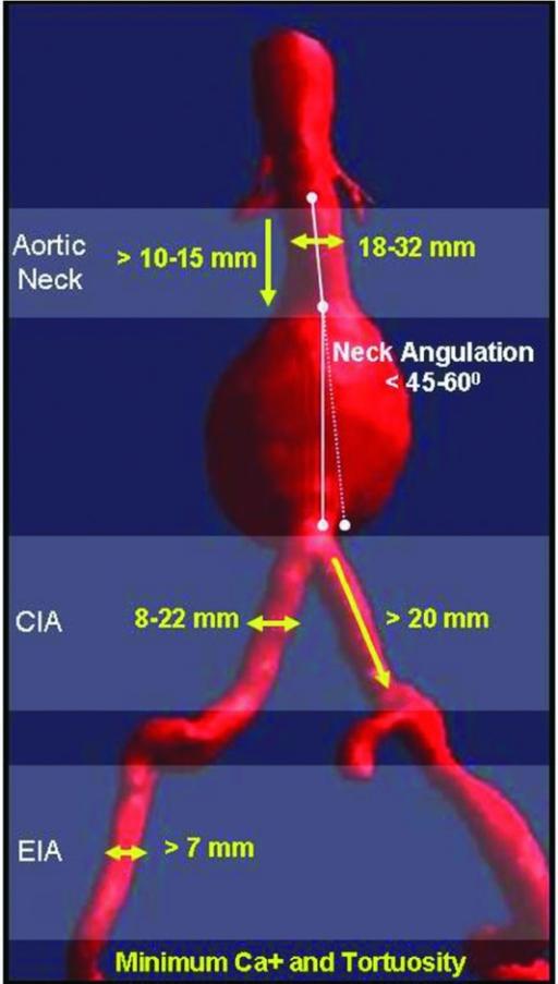 The Aortic And Iliac Arterial Anatomy Boundary Conditio Open I