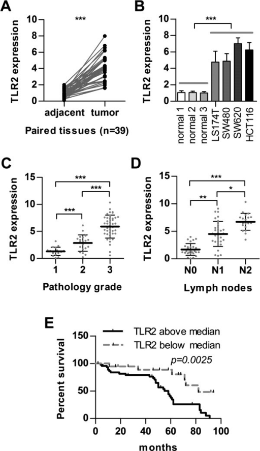 High TLR2 levels are associated with malignant transformation and lower overall survival in CRC patients. (A) Expression of TLR2 in 39 pairs of tumour samples and matched adjacent noncancerous tissues was measured by real-time PCR. (B) Expression of TLR2 was determined by real-time PCR in 3 normal colon epithelial cells and 4 CRC cell lines (SW480, LS174T, SW620, and HCT116). (C) Expression of TLR2 was determined in 79 CRC tissues (grade1 n = 18; grade2 n = 20; grade3 n = 41) by real-time PCR. The statistical method analysed the correlation between the expression of TLR2 and tumour pathological grade. (D) Expression of TLR2 was checked in 79 CRC tissues (N0 n = 28; N1 n = 31; N2 n = 20) by real-time PCR. The statistical method analysed the correlation between the expression of TLR2 and tumour lymph node metastasis. (E) Lower overall survival of patients with high TLR2 levels (above median; n = 37) compared to patients with low TLR2 levels (below median; n = 42). (***p < 0.001; **p < 0.01; *p < 0.05).