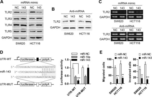 miR-143 directly targets TLR2. (A) Expression of TLR2, TLR3, TLR4, and TLR5 was measured in SW620 and HCT116 cells transfected with miR-143. NC is a double-stranded RNA and represents the miRNA mimic negative control. (B) Expression of TLR2 was measured in SW620 and HCT116 cells transfected with Anti-miR-143. NC is a single-stranded RNA and represents the anti-miRNA negative control. (C) The levels of TLR2 mRNA are negatively regulated by miR-143 in SW620 and HCT116 cells. (D) The sequence alignment of miR-143 with the putative binding site in the 3'UTR of the TLR2 gene. Reporter assay in SW620 cells transfected with luciferase constructs (UTR-WT or UTR-MUT) (mean ± SD). (E) Inhibition of migration and invasion of cancer cells by miR-143 was measured using Transwell chambers untreated with matrigel and matrigel-treated Transwell chambers. (WT: wild type; MUT: mutant; **p < 0.01; ***p < 0.001).