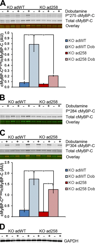 Effect of the E258K mutation on phosphorylation of cMyBP-C in mECT. (A–D) Phosphorylation of Ser275 (A), Ser284 (B), and Ser304 (C) in cMyBP-C−/− KO adWT and KO ad258 mECT. In A–C, the top Western blot rows show immunofluorescence after hybridization with the specific phospho-serine antibody and a goat anti–rabbit fluorescent secondary antibody, the middle rows show immunofluorescence after hybridization with a total cMyBP-C and a donkey anti–goat fluorescent secondary antibody, and the bottom rows show the dual fluorescence overlay, with the phospho-serine fluorescence in red and the total cMyBP-C fluorescence in green. In all cases, phospho-serine and total cMyBP-C migrated at ∼150 kD. (D) GAPDH (migrating at ∼37 kD) was used as an additional loading control for the same samples. +, mECT treated with 5 µM dobutamine 5 min before cell harvest; −, mECT not treated with dobutamine. The bar graphs show densitometric quantification of the Ser275 and Ser304 Western blots. *, P < 0.05 (one-way ANOVA with a Tukey's post-hoc test; n = 6). Error bars indicate SEM.